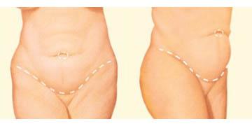 Abdominoplasty incisions