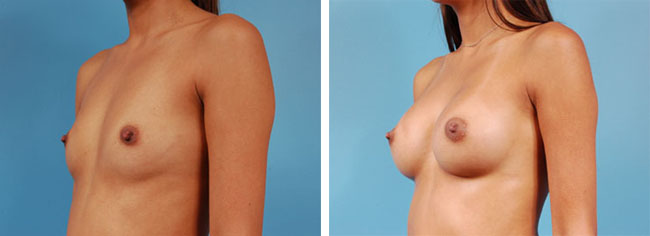 Breast Augmentation300cc Saline Implants