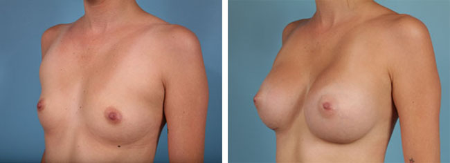 Breast Augmentation350cc Moderate Plus Silicone Gel Implants