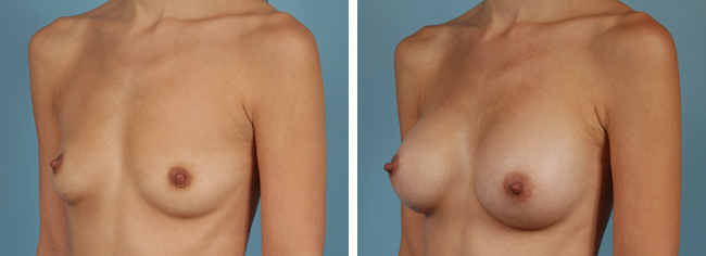 Breast Augmentation286cc Moderate Plus Silicone Gel Implants