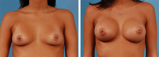 Breast Augmentation275cc Moderate Plus Silicone Gel Implants
