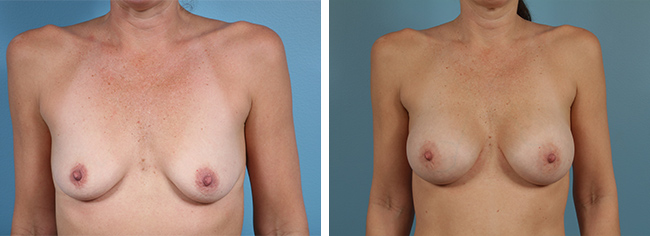 Breast Augmentation375cc Moderate Plus Silicone Gel Implants