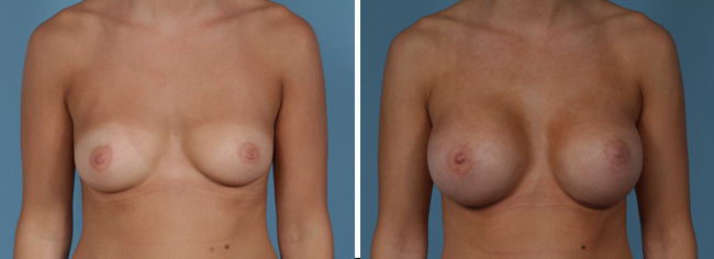 Breast Augmentation350 cc Moderate Plus Silicone Gel Implants