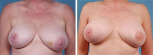 TRAM Flap Breast Reconstruction Chicago