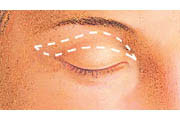 Eyelid lift diagram