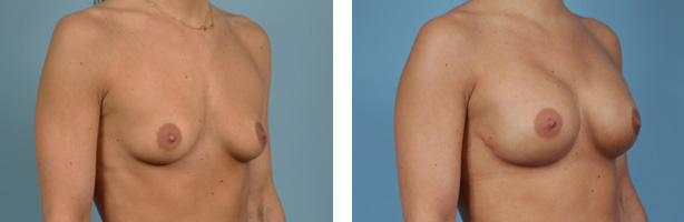Chicago Tissue Expander Breast Reconstruction Before and After