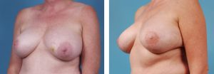 DIEP Flap Breast Reconstruction Chicago